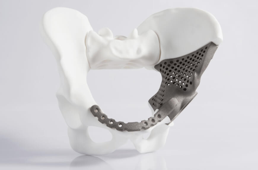 3D Printed Hip - 3D Printing