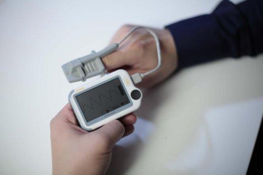 Viatom Checkme measures ECG at home