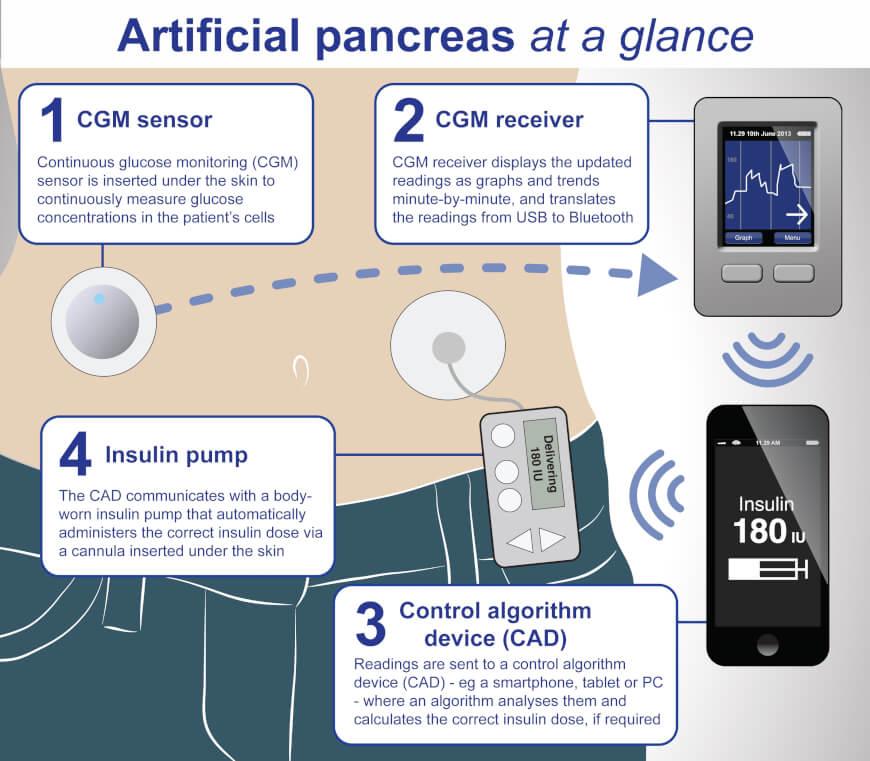 Bionic Pancreas - Design