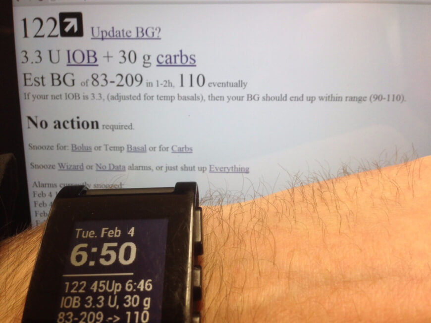 Hacked Raspberry Pi turned into artificial pancreas