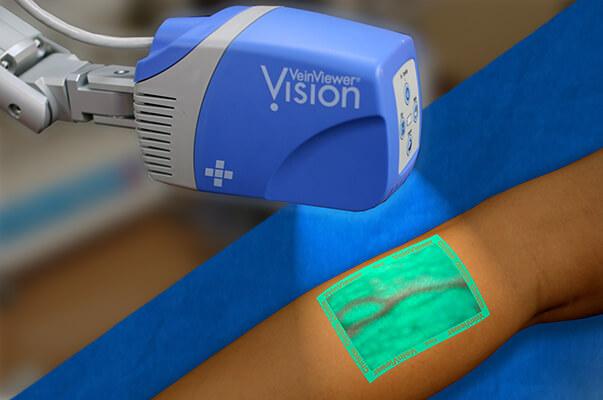 Vein Viewer - Vein Scanners