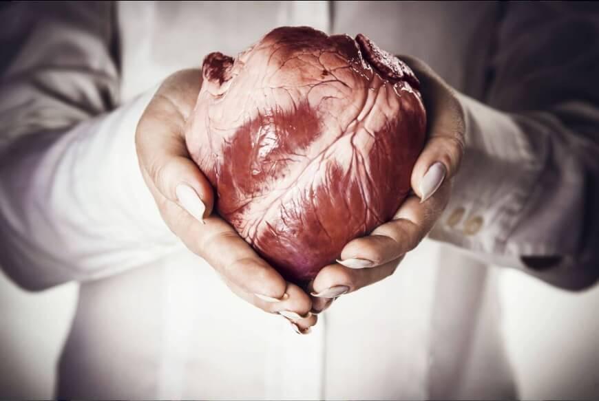 Organ bioprinting