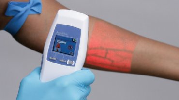 Vein Scanners: Examples For Disruption