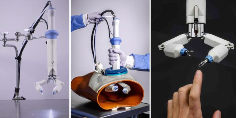 Virtual Incision - Robot - Future of Surgery
