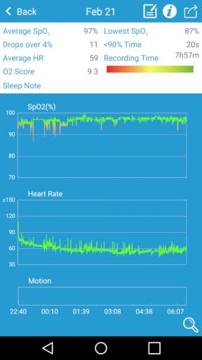 Viatom O2 - Sleep Tracking