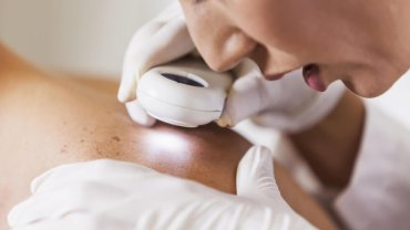 Amazing Technologies Changing The Future of Dermatology
