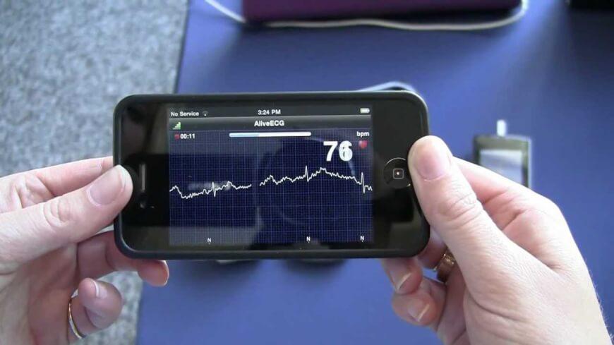Coala Heart Monitor Review