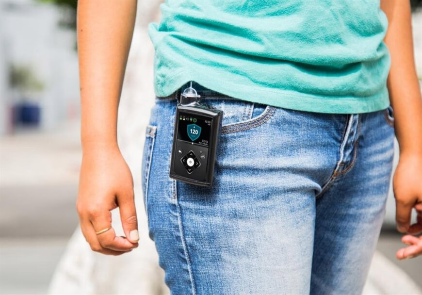 Medtronic's Smart Continuous Glucose Monitoring System Rolls Out This Summer