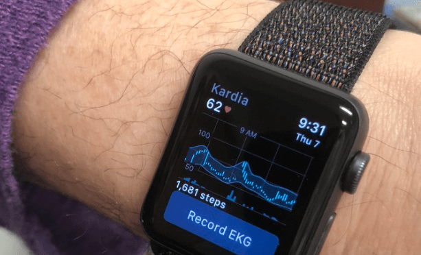 ECG wearable
