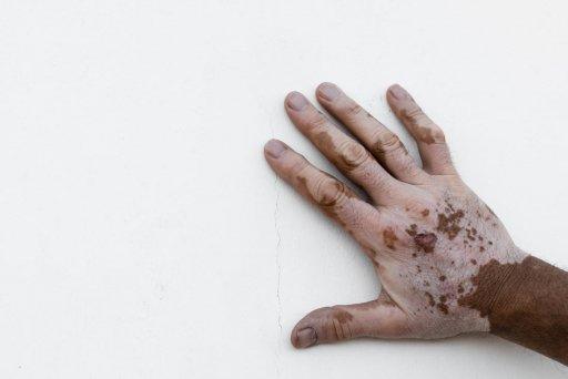 Digital Skin Care: Top 8 Dermatology Apps - The Medical Futurist